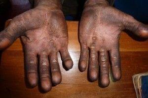 17 trabalhadores forreduzidos à condições